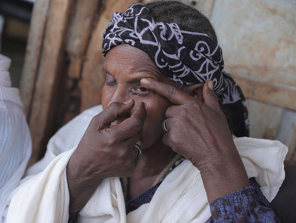 Eine Frau untersucht ihr Auge